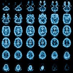 mri head magnetic resonance image