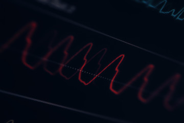 Close-up of the curve on the medical monitor