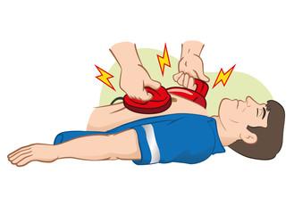 First Aid resuscitation (CPR) using defibrillator
