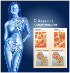 Knochenschwund.Osteoporose