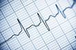 Leinwanddruck Bild - Electrocardiogram