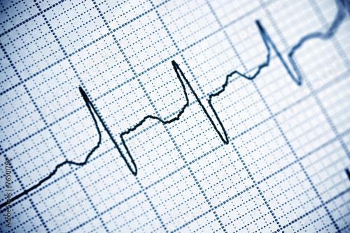 Leinwanddruck Bild Electrocardiogram