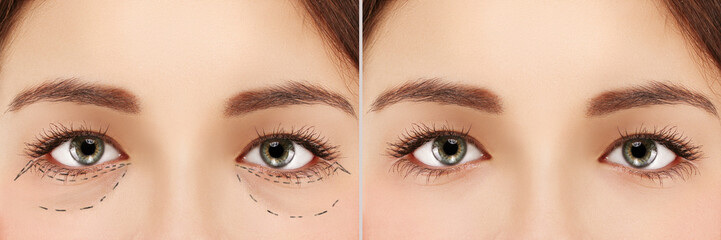 Lower blepharoplasty .Eyelid surgery