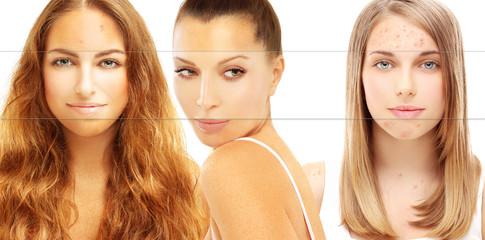 Various skin problems. Freckles, acne, pigmentation