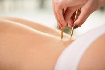 Close-up of acupuncture