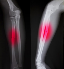X-ray of both human arms (broken arm)