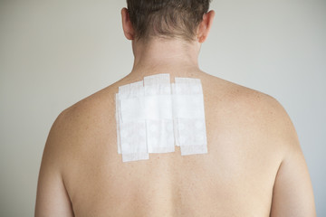 man back with allergy test