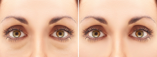 Eyes before and after blepharoplasty