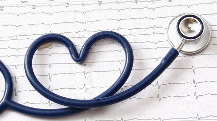 A blue stethoscope on a cardiogram