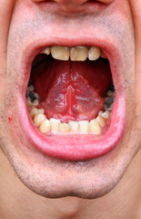 Tartar and tooth decay