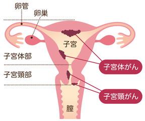 子宮がん 女性のからだ