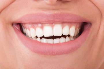 Close-up of perfect female teeth smiling