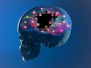 Cervello malattie degenerative Alzheimer, Parkinson