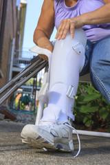 Woman with Spina Bifida adjusting leg brace