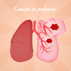 Lungs cancer