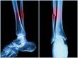 Fracture shaft of fibula bone ( leg bone ) .  X-ray of leg - 77054766