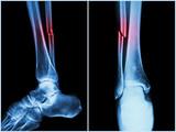 Fracture shaft of fibula bone ( leg bone ) .  X-ray of leg