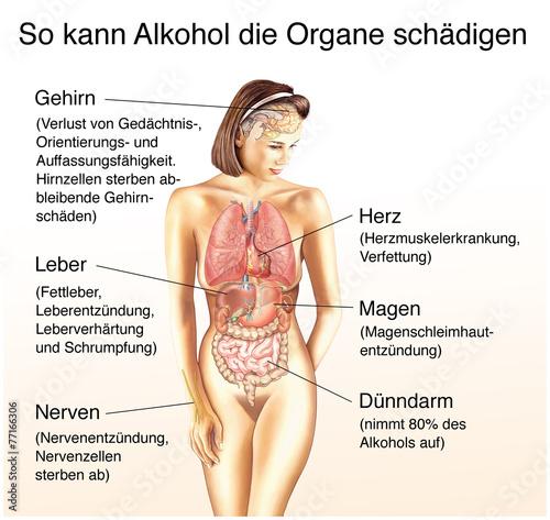 Die Kodierung des Alkoholismus kasani
