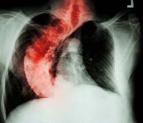 Scoliosis ( crooked spine ) X-ray chest of old people