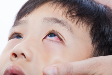 Closeup pinkeye (conjunctivitis) infection