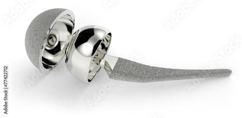 Leinwandbild Motiv Hip replacement implant