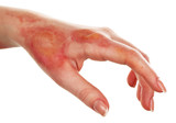Horrible burns on female hand isolated on white - 77427144
