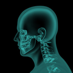 Head and neck x-ray scan