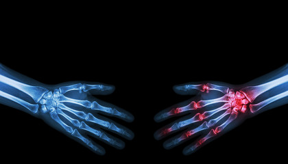X-ray normal person is shaking hand with Arthritis hand person