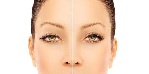 Marking the face.Upper blepharoplasty