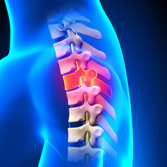 T3 Disc - Thoracic Spine Anatomy