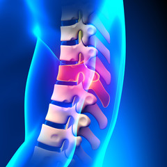 T8 Disc - Thoracic Spine Anatomy