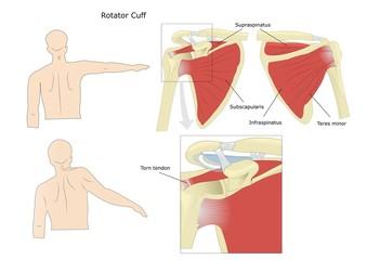 cuffia dei rotatori, normale e danneggiata