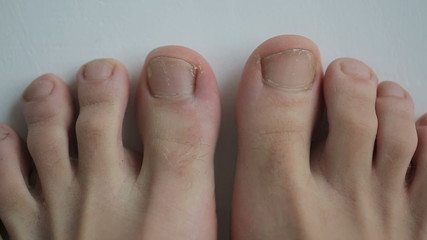 Young feet get old and sick with toenails fungal infection