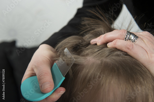 Checking for lice - 78095128