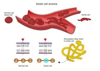 anemia falciforme, difetto genetico emoglobina