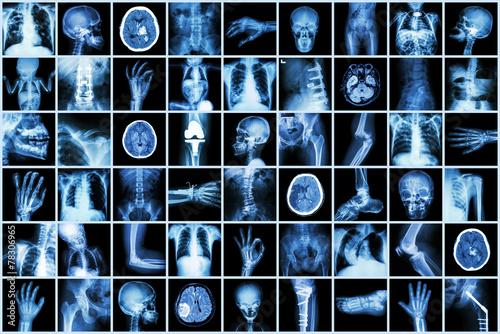 Leinwandbild Motiv X-ray multiple part of adult and child and Disease