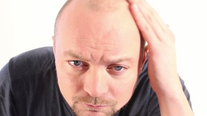 Hairline and Hairloss