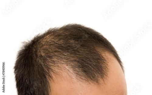 getting bald - 78401966