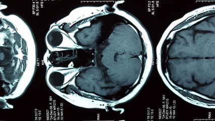 MRI brain scan, Dolly shot