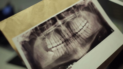 Doctor gets out of the package X-ray of jaw and looks at image