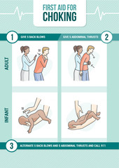 Choking first aid
