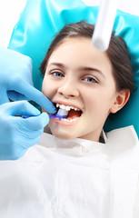 Lakowanie zębów,  dziecko u stomatologa