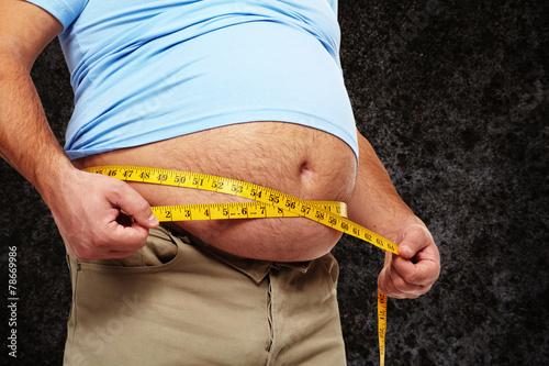 Obesity. - 78669986