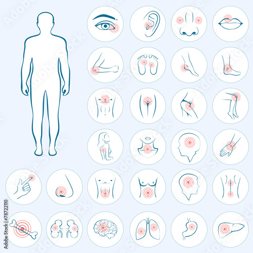 vector human anatomy, body pain, medical illustration - 78722110