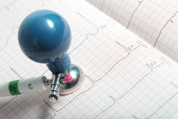 Electrode and ECG chart closeup