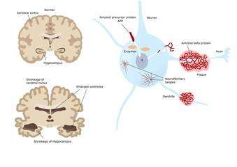 morbo di Alzheimer, danni cerebrali e neuronali