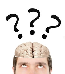 Question marks above brain inside sliced head