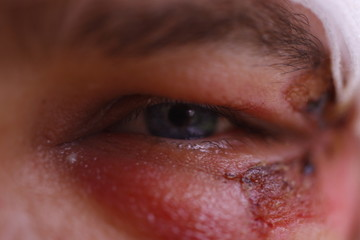 Close up of swollen eye after an accident with scars