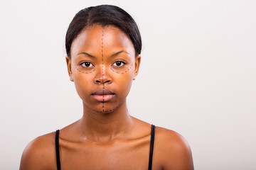 african woman face marked with lines for cosmetic surgery