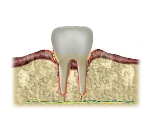 bakterielle entzündung am zahnfleisch